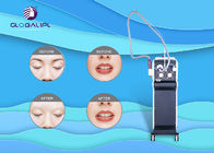 Professional Picosend Yag Machine For Tattoo Removal Elinimate Pigment